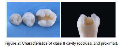 Amalgam Restorations And Future Perspectives