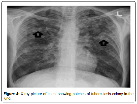 medical-informatics-patches-tuberculosis