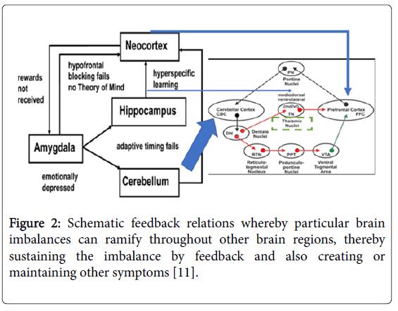 neonatal-and-pediatric-medicine-particular-brain