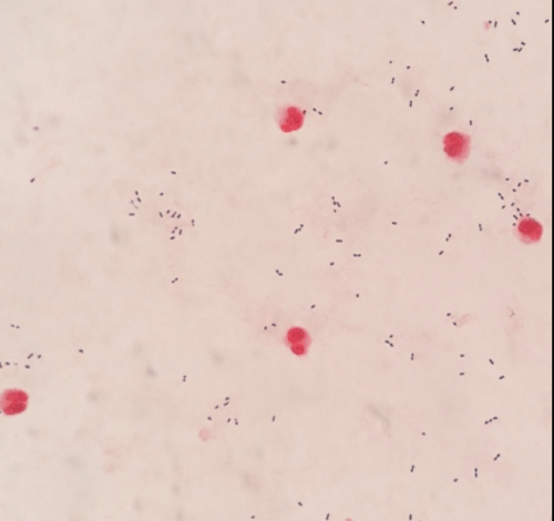 neuroinfectious-diseases-cSF-gram-staining