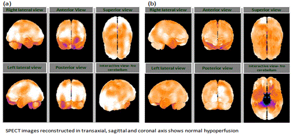 neuroinfectious-diseases-hypoperfusion