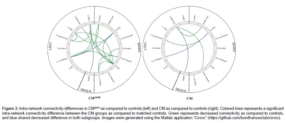 Central Executive and Default Mode Network Intra-network Functional
