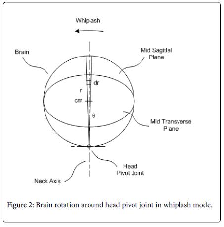 Rotation des Gehirns in der Kopfwirkung und seine Beziehung zur ...