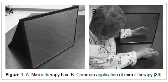 novel-physiotherapies-Mirror-therapy