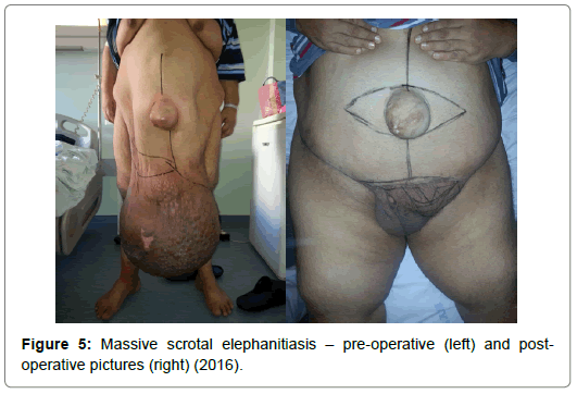 obesity-weight-loss-therapy-massive-scrotal-elephanitiasis