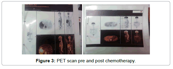 oncology-cancer-case-reports-post-chemotherapy