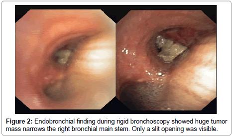 oncology-cancer-rigid-bronchoscopy