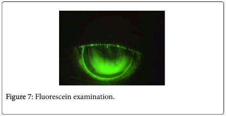 optometry-Fluorescein