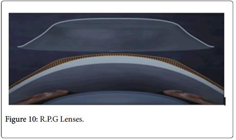 optometry-Lenses