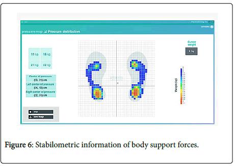 optometry-Stabilometric