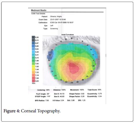 optometry-Topography