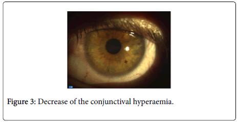 optometry-conjunctival