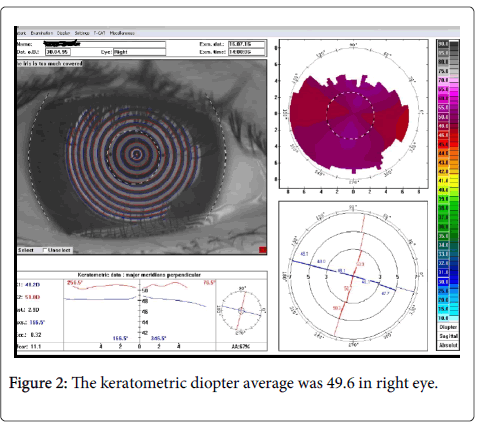 optometry-diopter-average