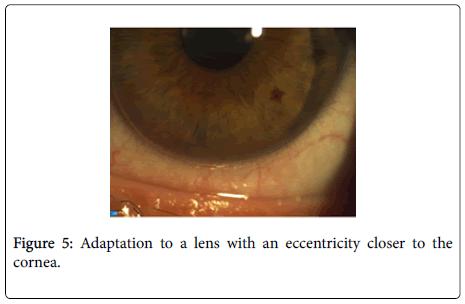 optometry-lens
