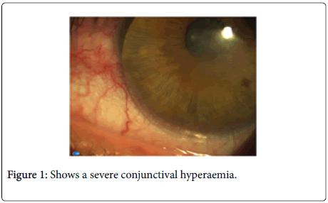 optometry-severe