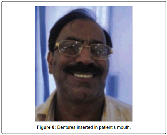 oral-hygiene-health-dentures-inserted-mouth
