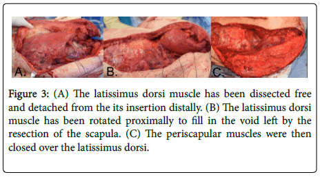 orthopedic-oncology-latissimus