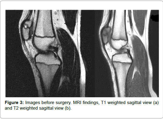 orthopedic-oncology-weighted-sagittal