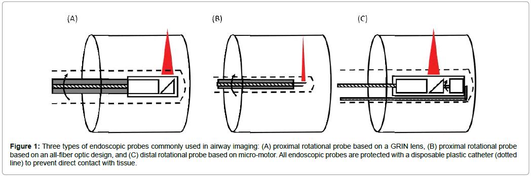 otolaryngology-endoscopic-probes