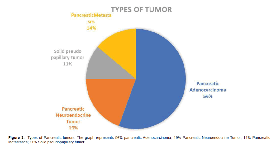 pain-relief-Pancreatic-tumors