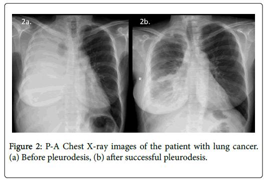 palliative-care-medicine-lung-cancer