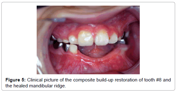 pediatric-dental-care-clinical-picture-build-up-restoration