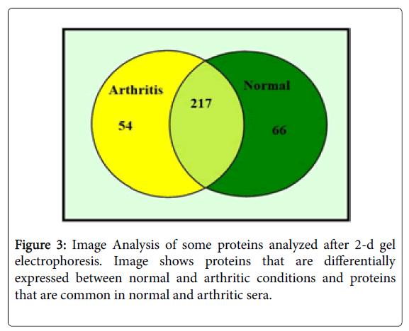 pharmacogenomics-pharmacoproteomics-arthritic-sera