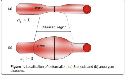 physical-chemistry-biophysics-aneurysm-diseases