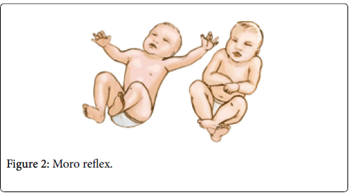 physical-medicine-rehabilitation-Moro-reflex