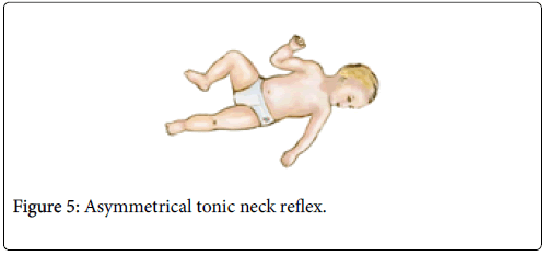 physical-medicine-rehabilitation-tonic-neck