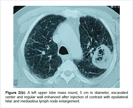 pulmonary-respiratory-medicine-lobe-mass