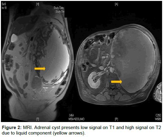 radiology-MRI-Adrenal-cyst