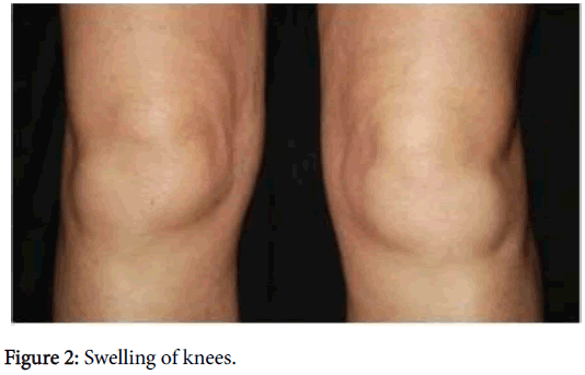 radiology-Swelling-knees