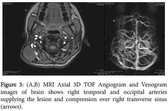 radiology-TOF-Angiogram-Venogram