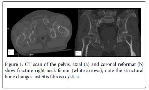 radiology-reformat