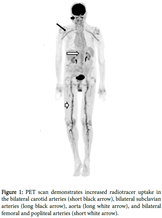 radiology-short-white-arrow