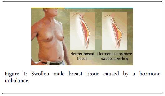 steroids-hormonal-male-breast