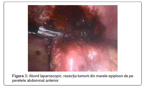 surgery-abdominal