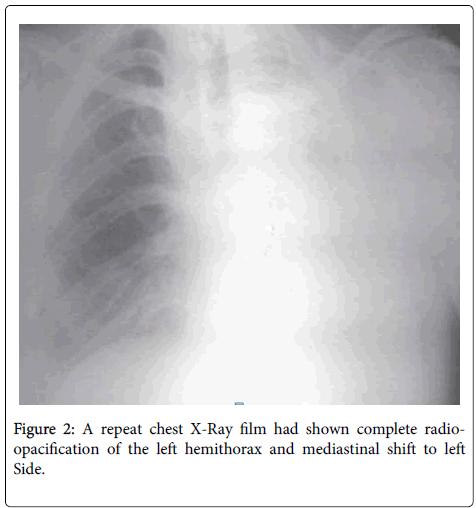 surgery-anesthesia-left-hemithorax