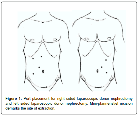 transplantation-technologies-laparoscopic