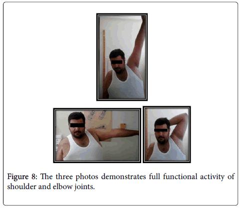 trauma-treatment-functional-activity