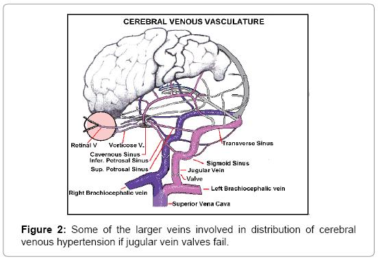 trauma-treatment-venous-hypertension