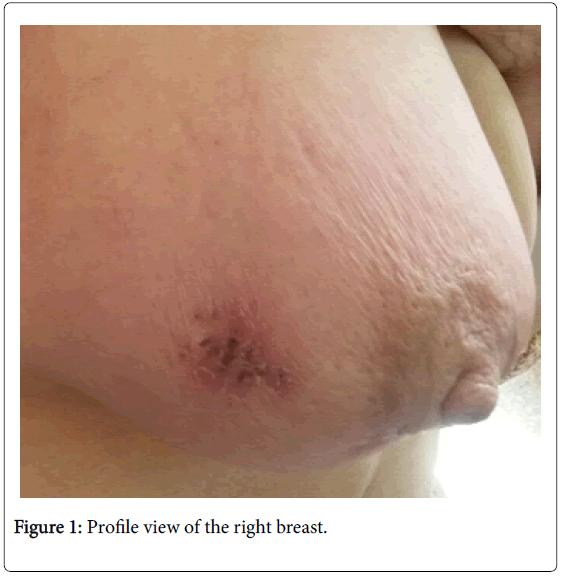 tuberculosis-therapeutics-profile-view-breast