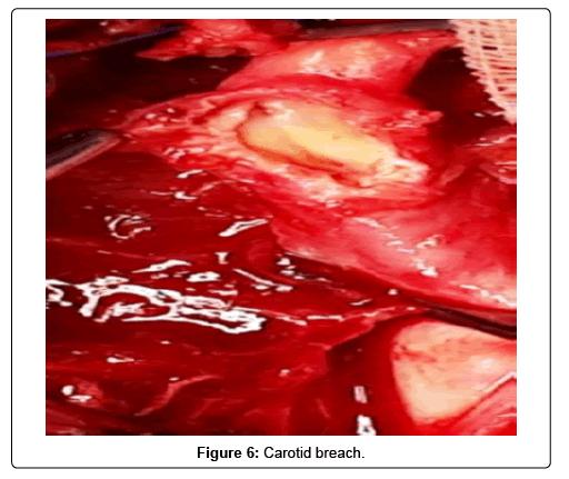 vascular-medicine-surgery-breach