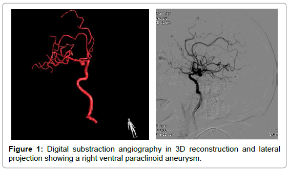 vascular-medicine-surgery-digital-substraction-angiography