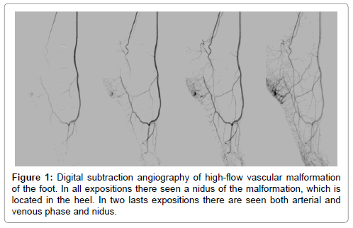 vascular-medicine-surgery-digital-subtraction-angiography