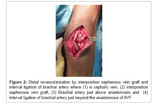 vascular-medicine-surgery-saphenous