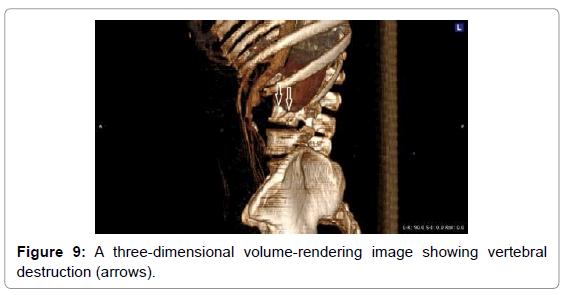 vascular-medicine-surgery-three-dimensional-volume